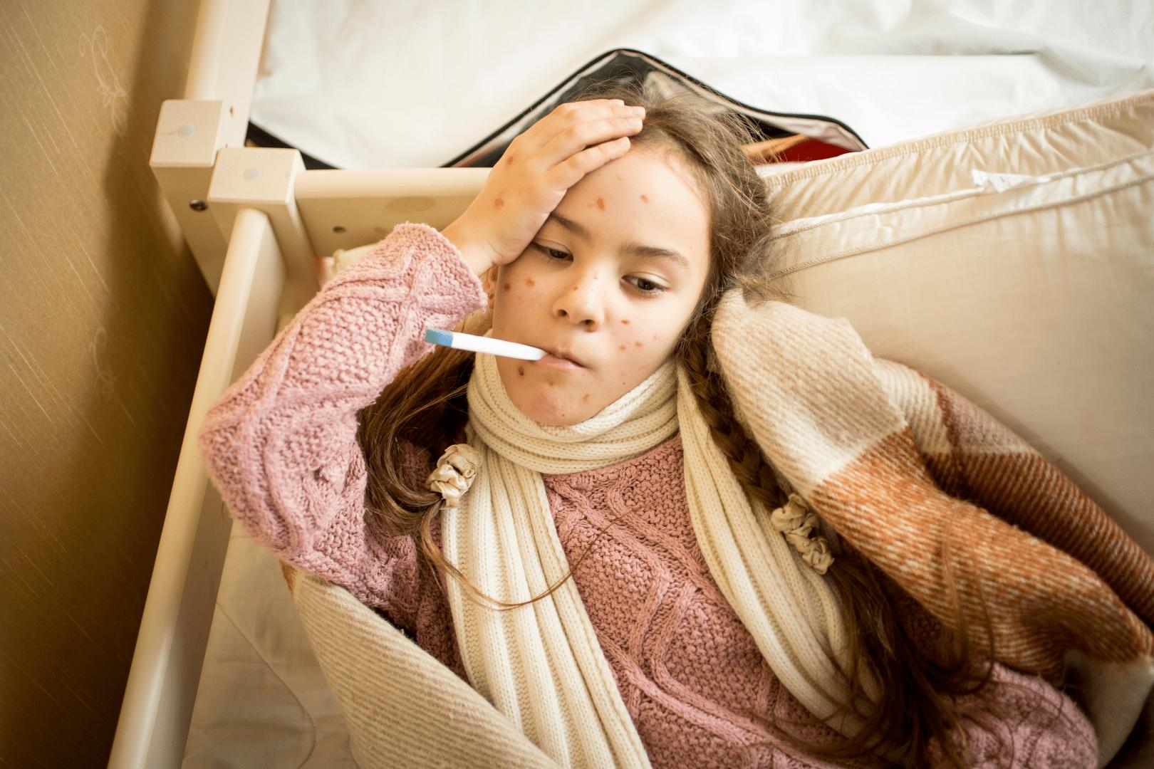 Catapora sintomas febre