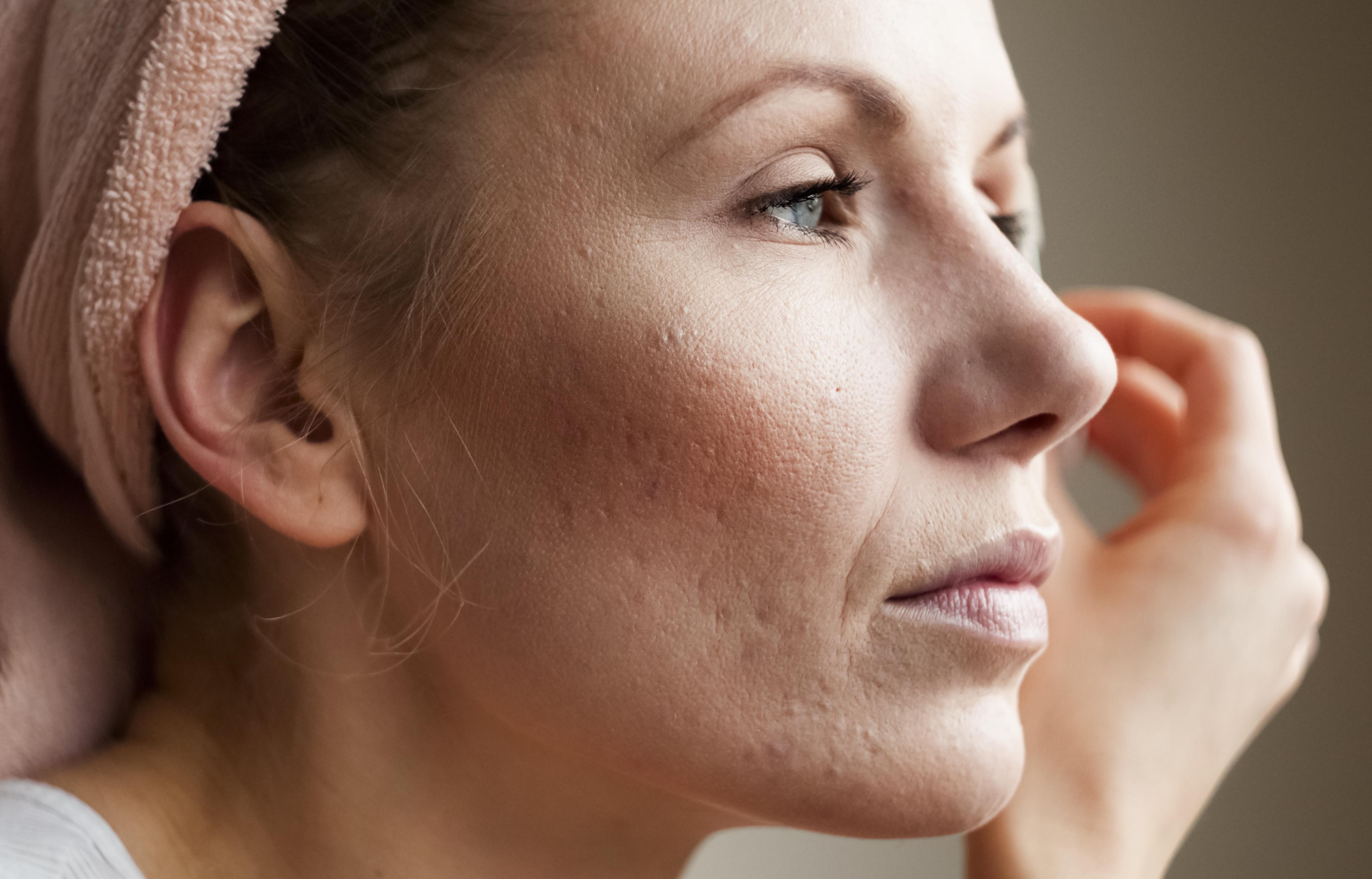 cuidados com a pele no inverno mulher de perfil olhando para frente