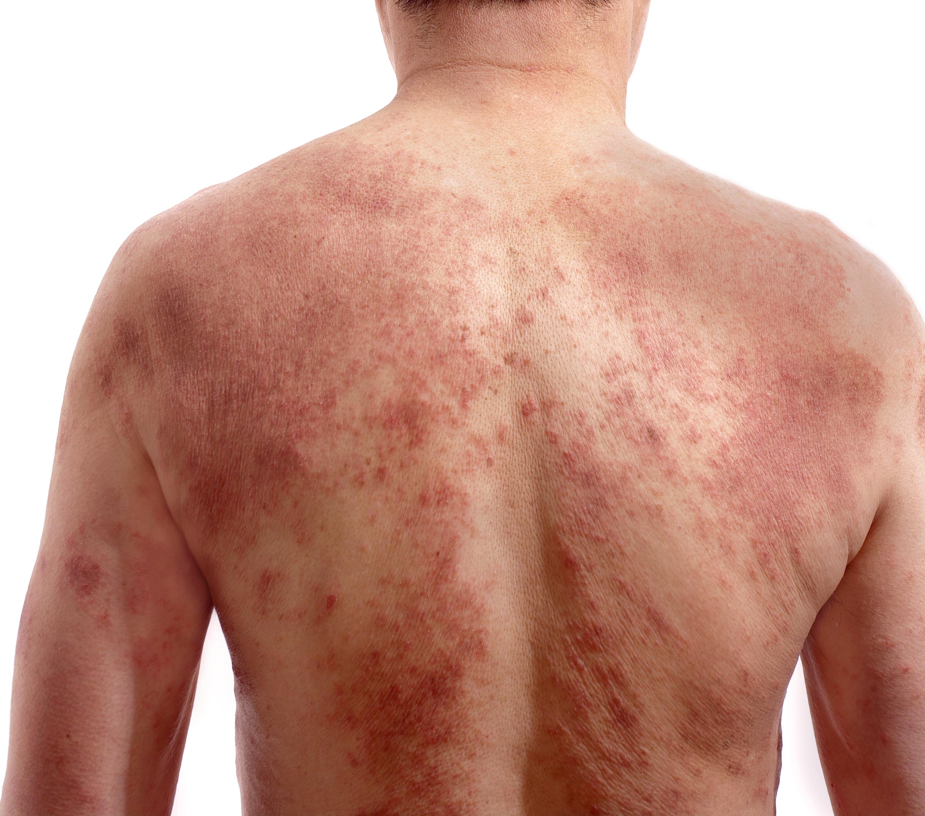 sarampo homem de costas com manchas vermelhas espalhadas pelas costas e bracos
