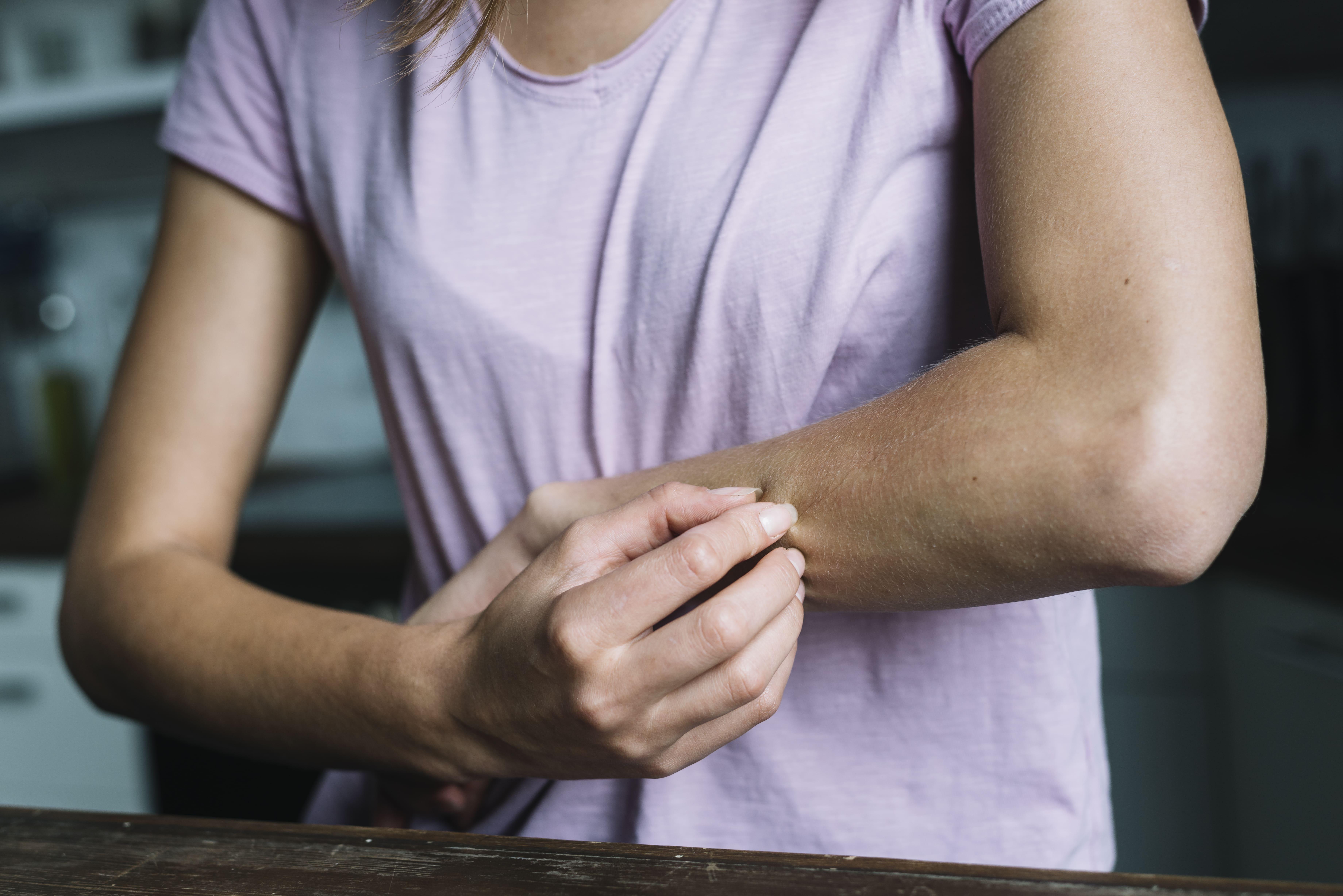 mulher cocando o braco
